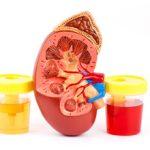 Кровь при мочеиспускании у женщин: причины, симптомы и лечение