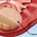 Аденома почки — что это, симптомы и лечение