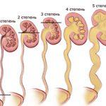 Рефлюкс мочевого пузыря: что это, симптомы и лечение