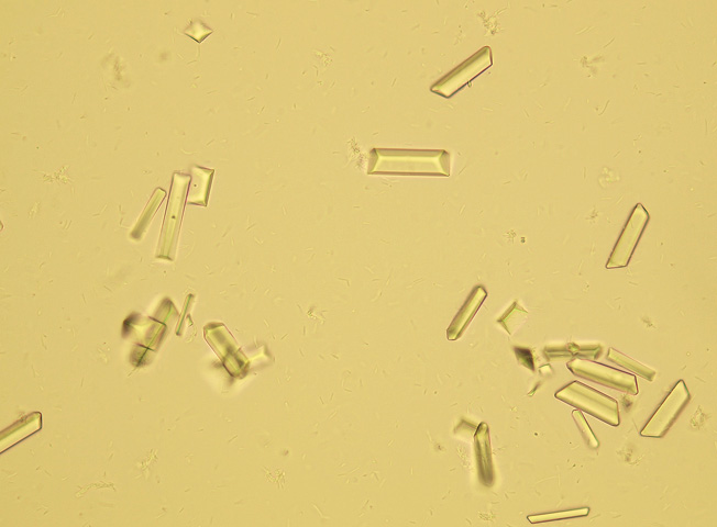 Фосфаты (аморфные кристаллы) в моче