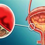 Утолщение стенок мочевого пузыря — что это, причины и лечение