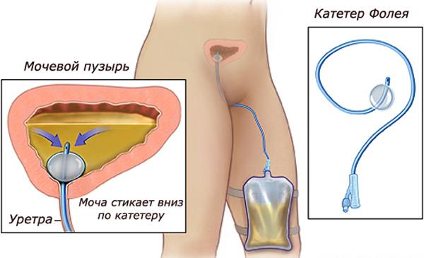 Катетер вставляют в мочевой пузырь порно