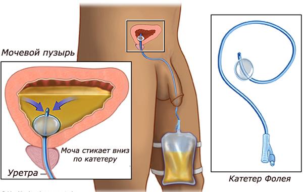 Катетеризация у мужчин