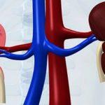 Хронический нефрит — что это такое, симптомы и лечение