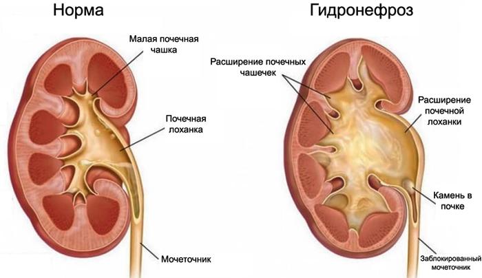 Пиелокаликоэктазия правой почки у беременной 71
