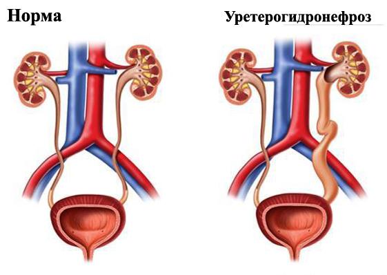Норма и болезнь