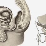 Удаление мочевого пузыря у мужчин: последствие и восстановление