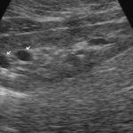 Повышена эхогенность паренхимы почек: причины, диагностика и что делать
