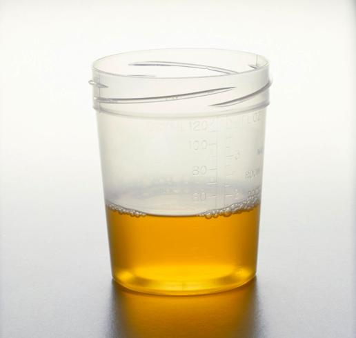Урина