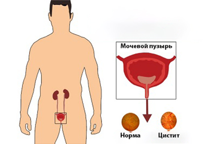 Схема цистита у мужчины