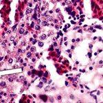 Гиперплазия почки: что это, симптомы и лечение