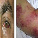 Геморрагическая лихорадка: причины, симптомы и лечение