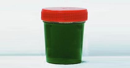 Зеленая моча