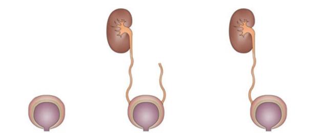 Аплазия почки: что это, виды, симптомы и лечение, Все о здоровье почек