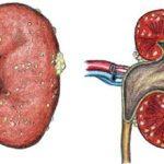 Апостематозный пиелонефрит: причины, симптомы и лечение