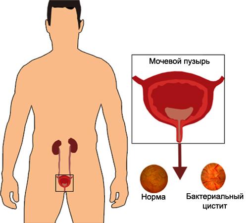 Бактериальный цистит - причины, симптомы и лечение Все о здоровье почек