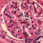 Болезнь Берже (iga нефропатия): что это, симптомы и лечение