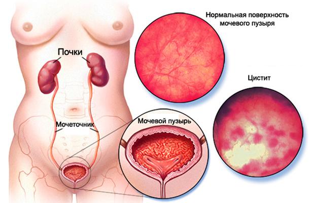 Геморрагический цистит у женщин и мужчин лечение симптомы причины