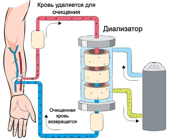 Как проходит гемодиализ