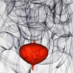 Геморрагический цистит: что это, симптомы и лечение