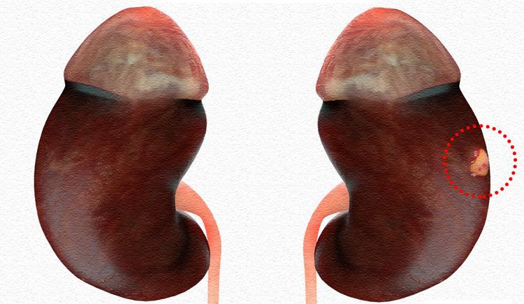 Как выглядит инфаркт почки