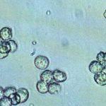 Лейкоциты в моче у ребенка: нормы, причины повышения и что делать
