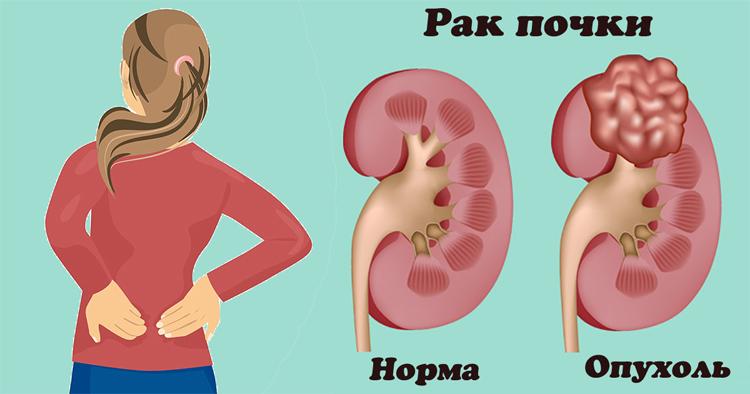 Норма и рак почки