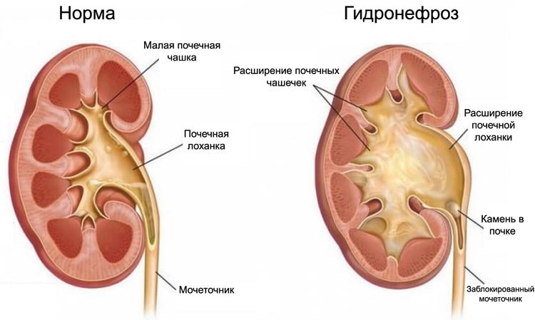 Норма и гидронефроз