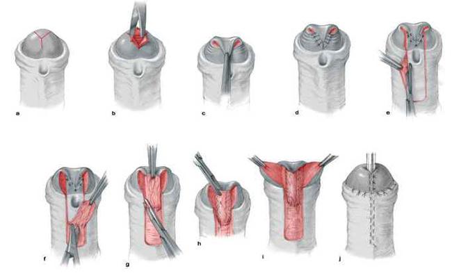 Общий вид операции