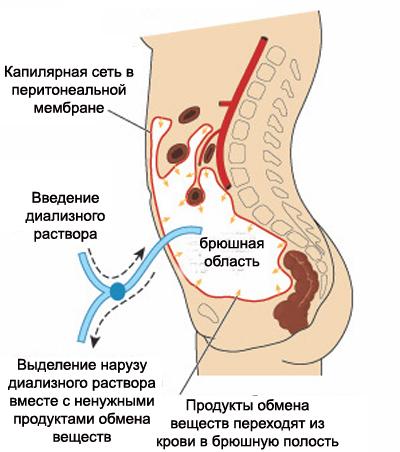 Перетониальный диализ