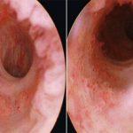 Рак уретры: симптомы, прогнозы и лечение