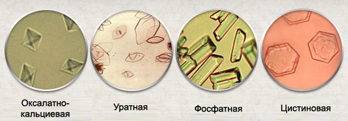 Виды кристаллурии