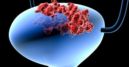 Рак (опухоль) мочевого пузыря у мужчин и женщин