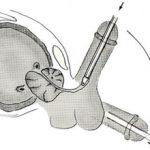 Бужирование уретры у мужчин: что это, подготовка и проведение