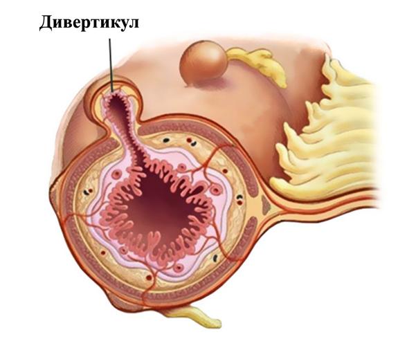 Дивертикул мочевого пузыря