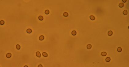 Микрогематурия и макрогематурия