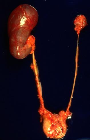 Как выглядит гипоплазия почек