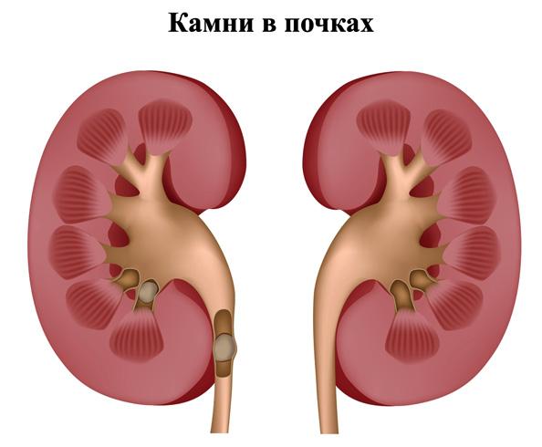 Цистолитиаз