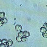 Лейкоциты в моче у женщин и мужчин: норма и причины повышения