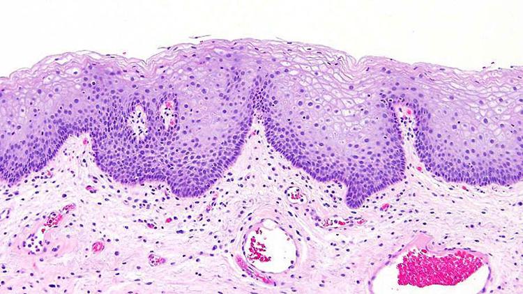 Плоскоклеточная метаплазия мочевого пузыря