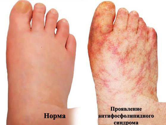 Норма и Антифосфолипидный синдром