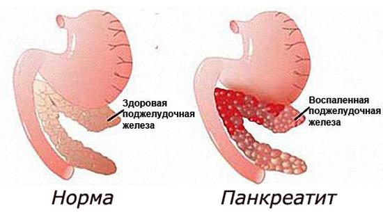 Норма и панкреатит