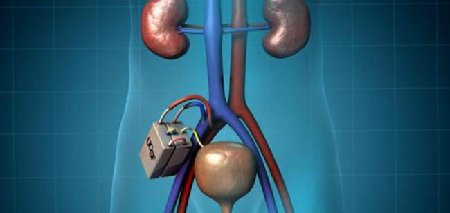 Имплантируемая искусственная почка