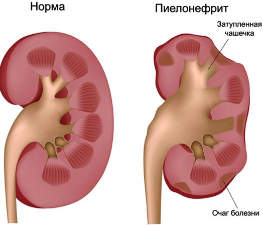 Хронический пиелонефрит и цистит