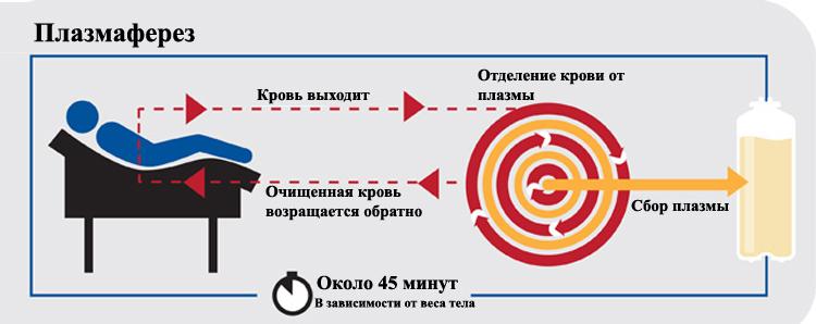 Процесс плазмафереза