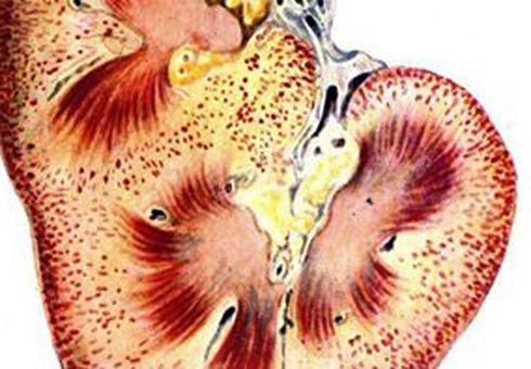 Посттрансфузионный нефроз