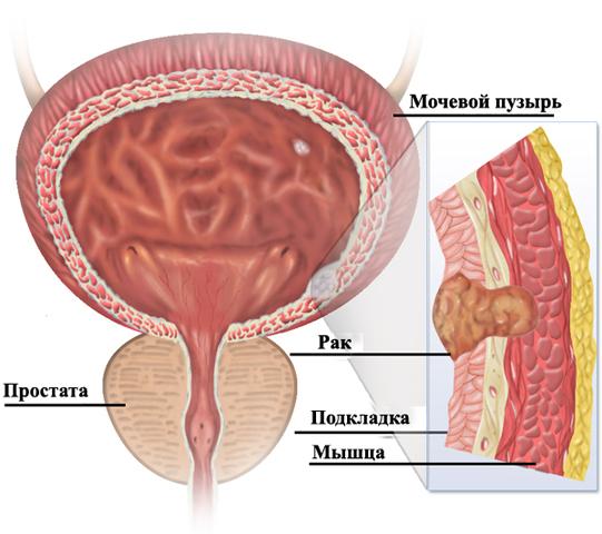 Рак мочевого пузыря у мужчины