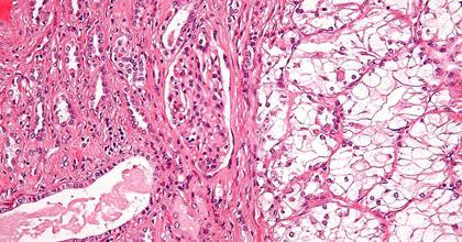 Почечно-клеточный рак почки