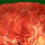 Нефросклероз почек — что это такое, симптомы и исход заболевания