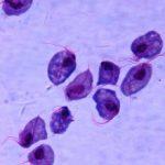 Трихомонадный уретрит у мужчин и женщин: симптомы и лечение